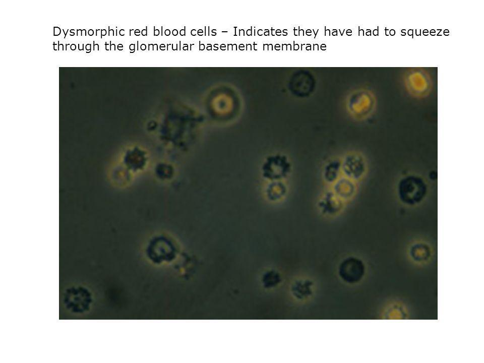 Dysmorphic red blood cells – Indicates they have had to squeeze through the glomerular basement membrane