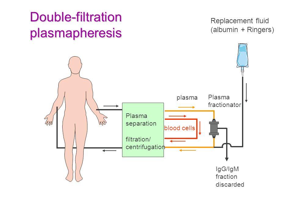 Plasma separation filtration/ centrifugation Replacement fluid (albumin + Ringers) IgG/IgM fraction discarded Double-filtration plasmapheresis blood c