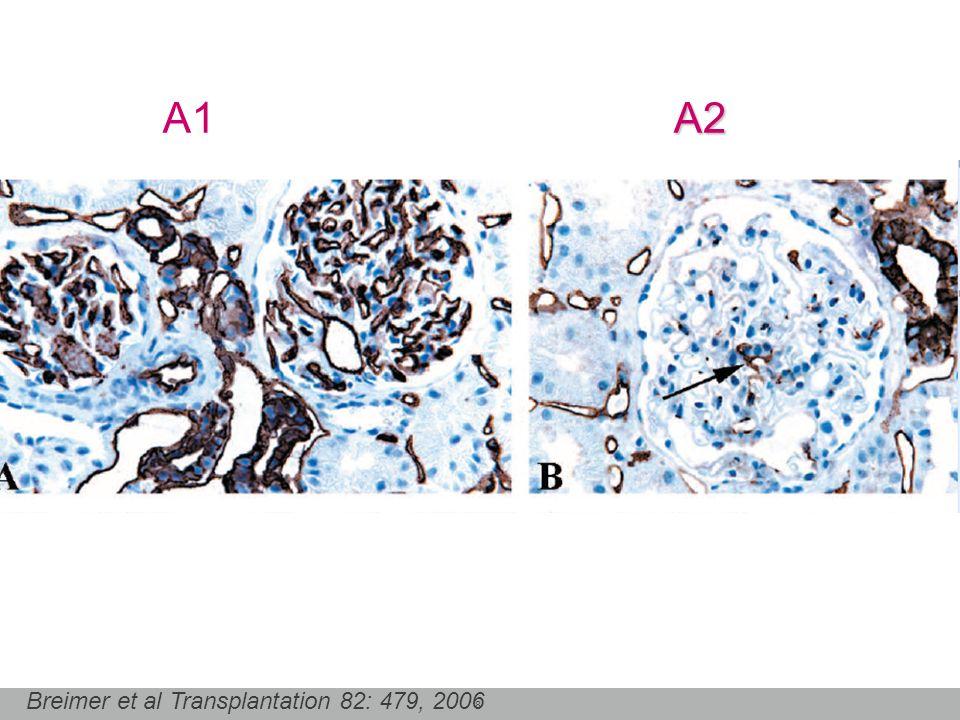 8 A2 A1 A2 Breimer et al Transplantation 82: 479, 2006