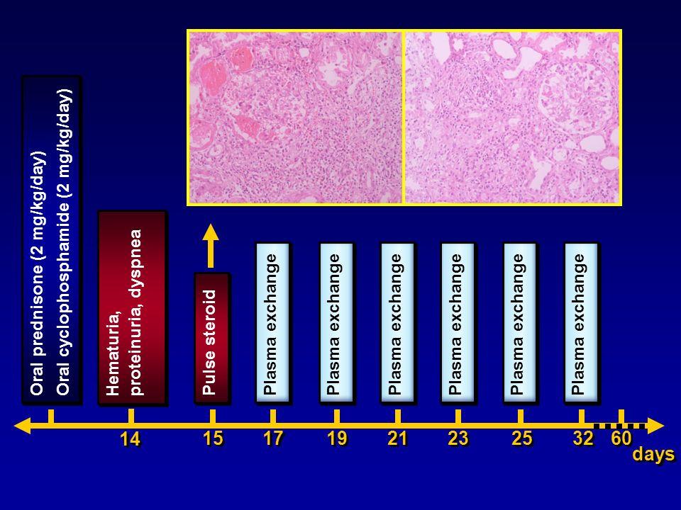 Oral prednisone (2 mg/kg/day) Oral cyclophosphamide (2 mg/kg/day) Oral prednisone (2 mg/kg/day) Oral cyclophosphamide (2 mg/kg/day) days 15 Pulse ster