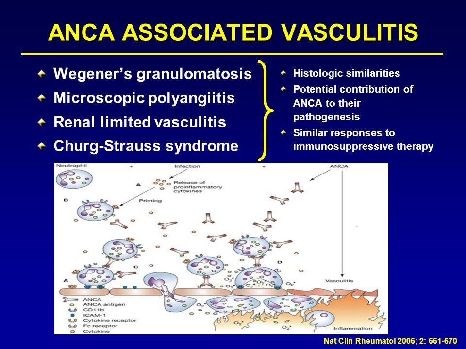 ANCA ASSOCIATED VASCULITIS Wegeners granulomatosis Microscopic polyangiitis Renal limited vasculitis Churg-Strauss syndrome Histologic similarities Po