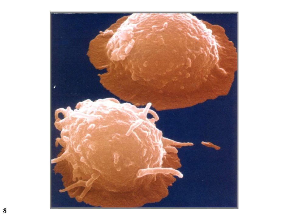 19 ACUTE KIDNEY INJURY - Cysplatin 0 20 40 60 80 100 014571129 days Mesenchymal stem cell injection BUN (mg/dl) * * Saline MSC Imberti et al., J Am Soc Nephrol, 2007