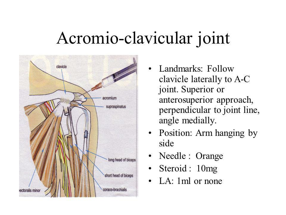 Acromio-clavicular joint Landmarks: Follow clavicle laterally to A-C joint.