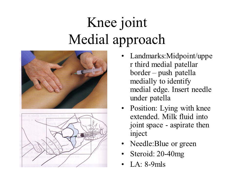 Knee joint Medial approach Landmarks:Midpoint/uppe r third medial patellar border – push patella medially to identify medial edge.