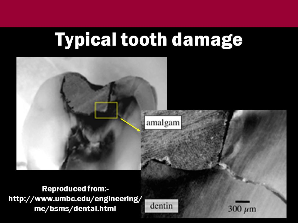 Typical tooth damage Reproduced from:-   me/bsms/dental.html
