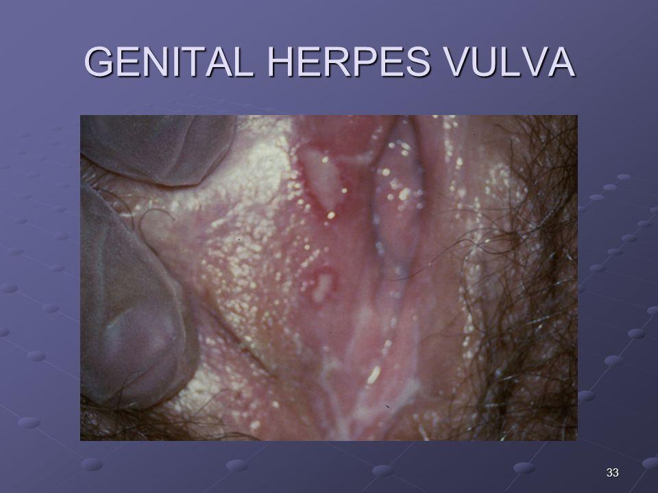 33 GENITAL HERPES VULVA