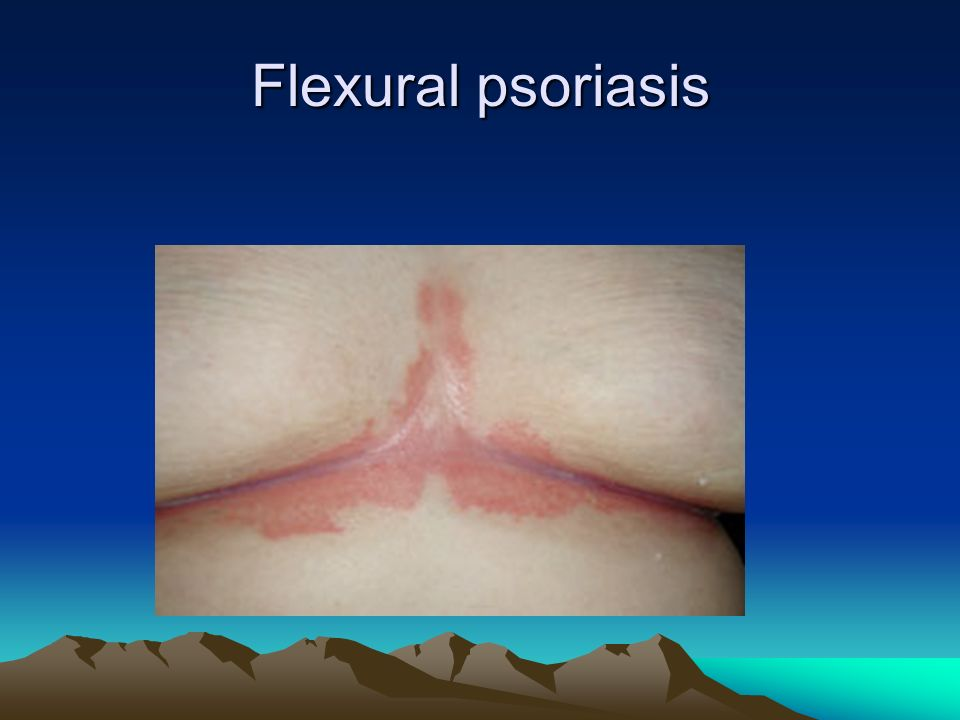 Flexural psoriasis