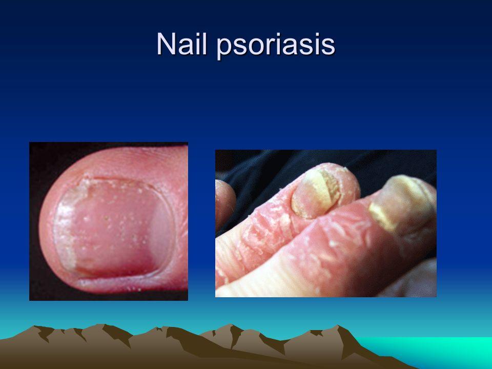 Nail psoriasis