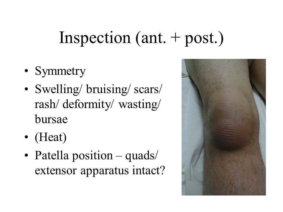 Inspection (ant. + post.) Symmetry Swelling/ bruising/ scars/ rash/ deformity/ wasting/ bursae (Heat) Patella position – quads/ extensor apparatus int