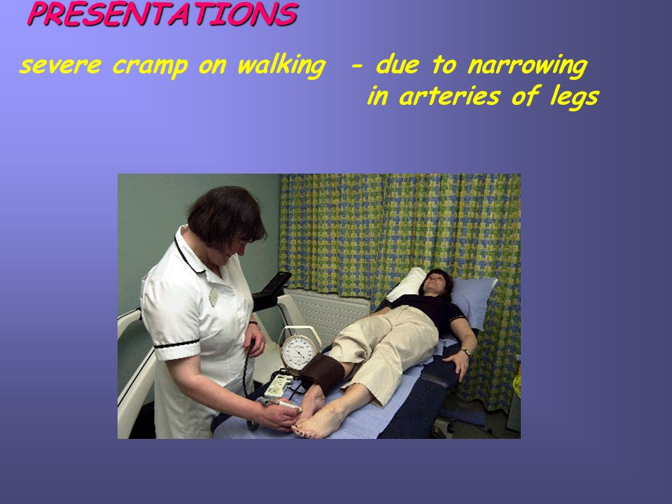 PRESENTATIONS severe cramp on walking - due to narrowing in arteries of legs