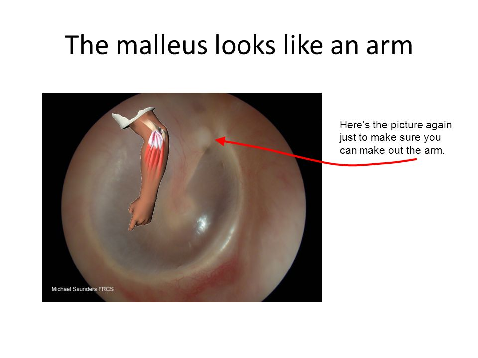 The malleus looks like an arm Heres the picture again just to make sure you can make out the arm.