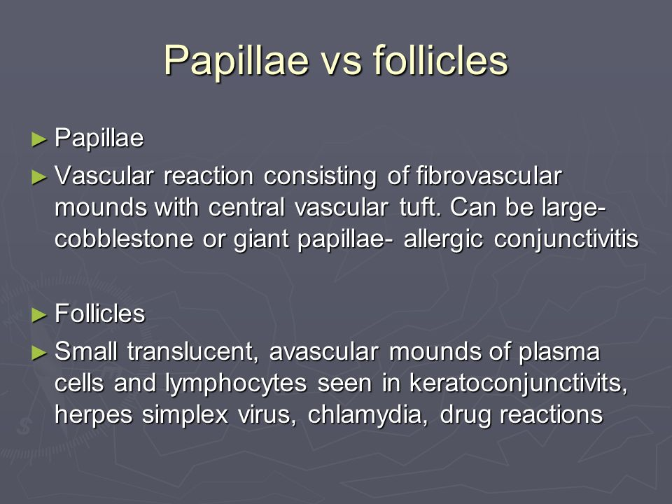 Papillae vs follicles Papillae Papillae Vascular reaction consisting of fibrovascular mounds with central vascular tuft.