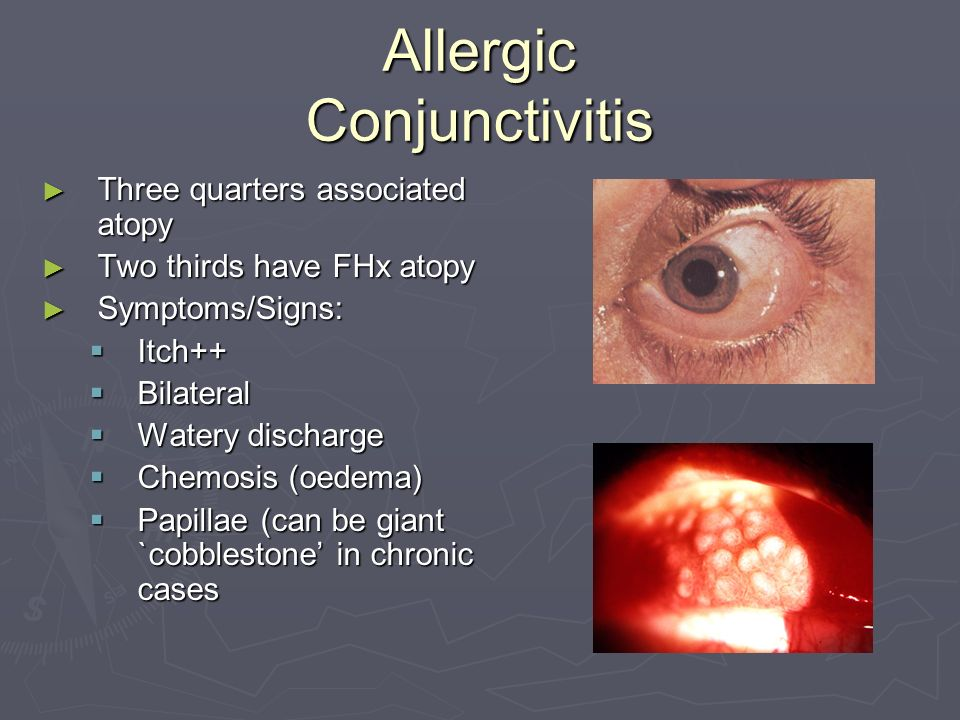 Allergic Conjunctivitis Three quarters associated atopy Three quarters associated atopy Two thirds have FHx atopy Two thirds have FHx atopy Symptoms/Signs: Symptoms/Signs: Itch++ Itch++ Bilateral Bilateral Watery discharge Watery discharge Chemosis (oedema) Chemosis (oedema) Papillae (can be giant `cobblestone in chronic cases Papillae (can be giant `cobblestone in chronic cases