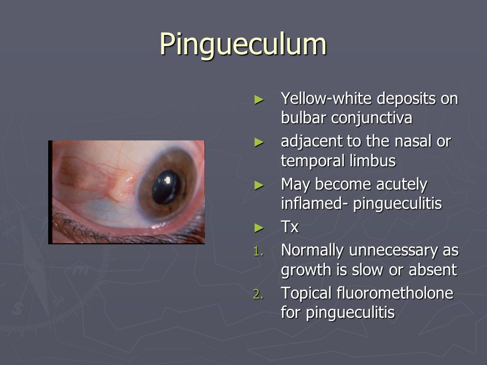 Pingueculum Yellow-white deposits on bulbar conjunctiva adjacent to the nasal or temporal limbus May become acutely inflamed- pingueculitis Tx 1.