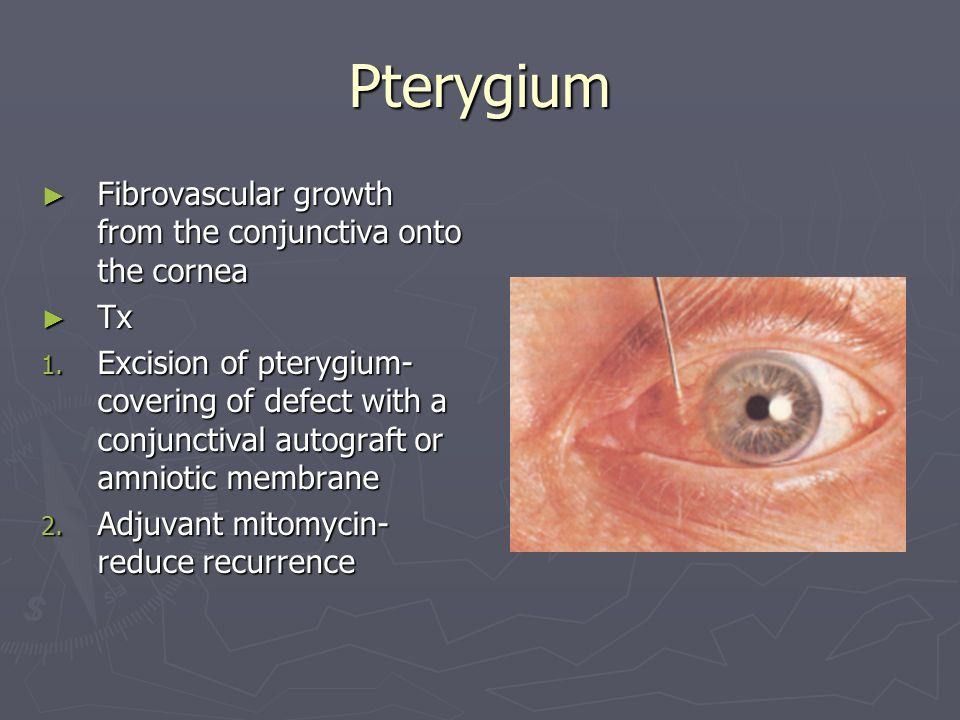 Pterygium Fibrovascular growth from the conjunctiva onto the cornea Fibrovascular growth from the conjunctiva onto the cornea Tx Tx 1.