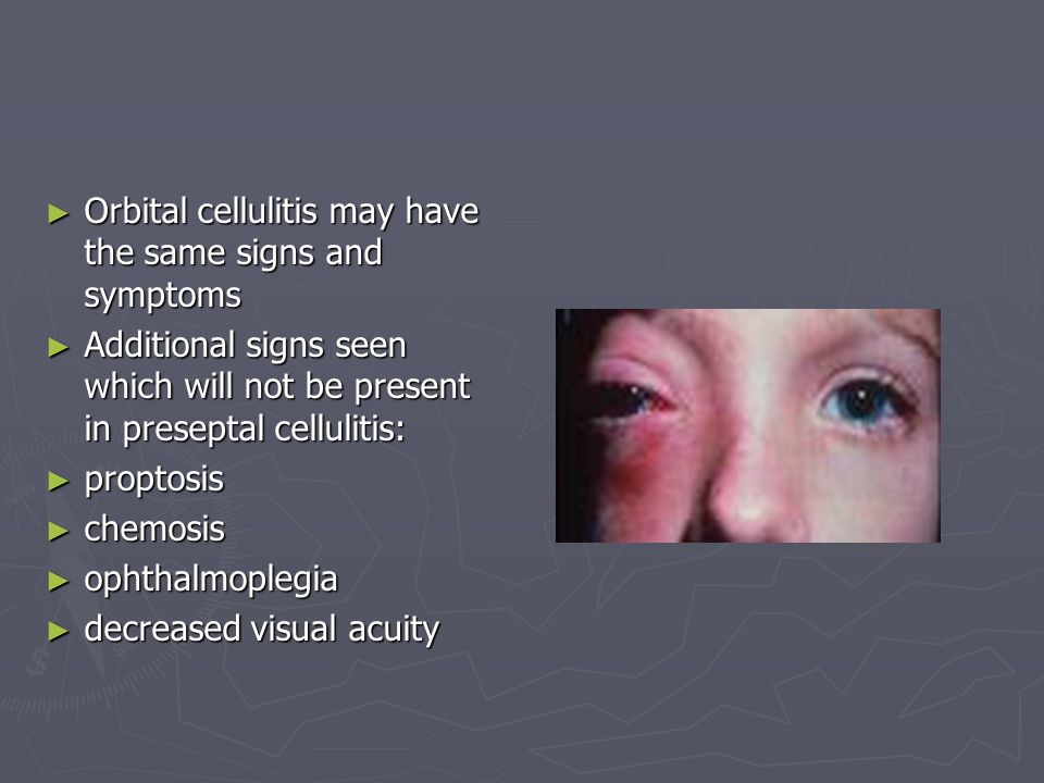 Orbital cellulitis may have the same signs and symptoms Orbital cellulitis may have the same signs and symptoms Additional signs seen which will not be present in preseptal cellulitis: Additional signs seen which will not be present in preseptal cellulitis: proptosis proptosis chemosis chemosis ophthalmoplegia ophthalmoplegia decreased visual acuity decreased visual acuity