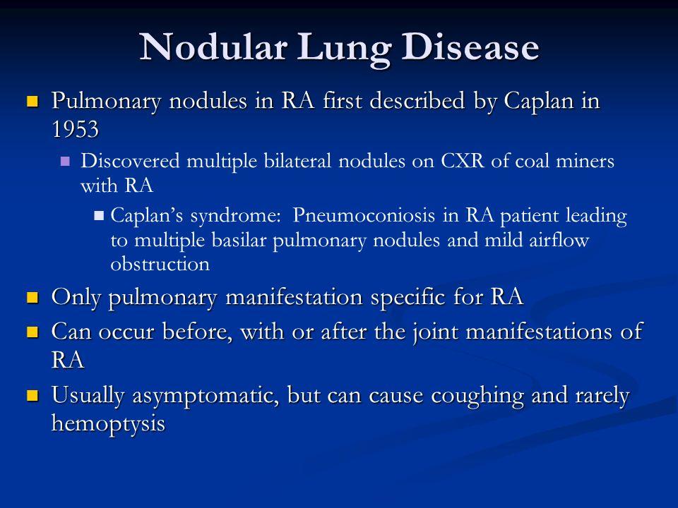 Nodular Lung Disease Pulmonary nodules in RA first described by Caplan in 1953 Pulmonary nodules in RA first described by Caplan in 1953 Discovered mu