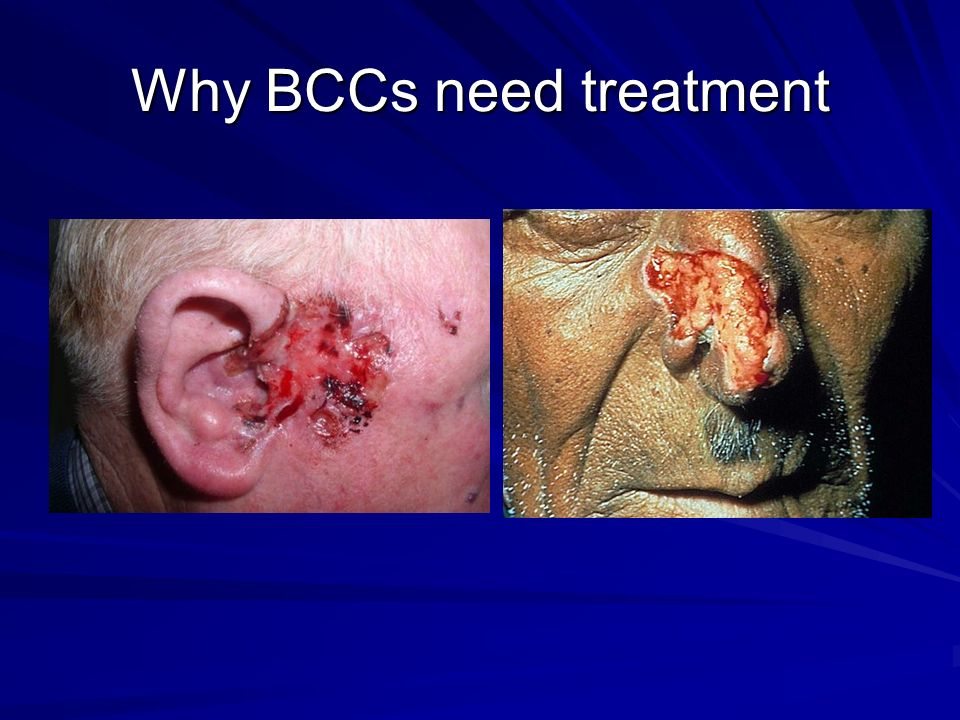 Why BCCs need treatment