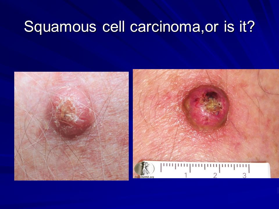 Squamous cell carcinoma,or is it?