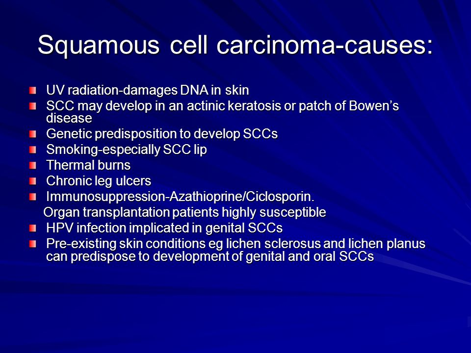 Squamous cell carcinoma-causes: UV radiation-damages DNA in skin SCC may develop in an actinic keratosis or patch of Bowens disease Genetic predisposi