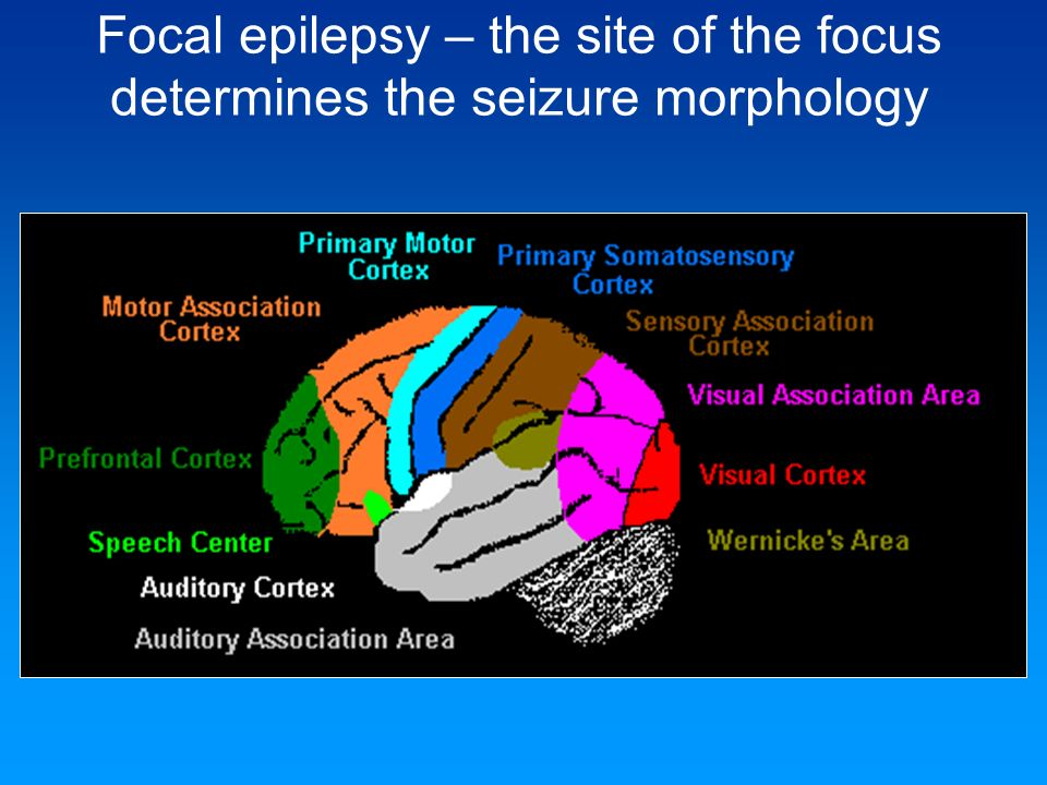 Focal epilepsy – the site of the focus determines the seizure morphology
