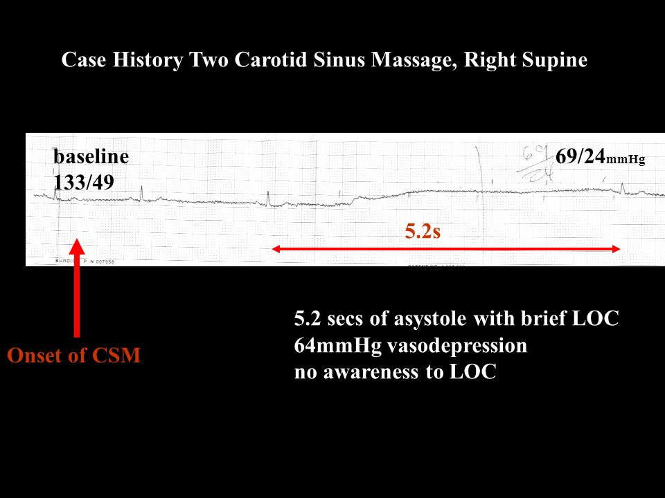 Onset of CSM 5.2 secs of asystole with brief LOC 64mmHg vasodepression no awareness to LOC baseline 133/49 Case History Two Carotid Sinus Massage, Right Supine 5.2s 69/24 mmHg