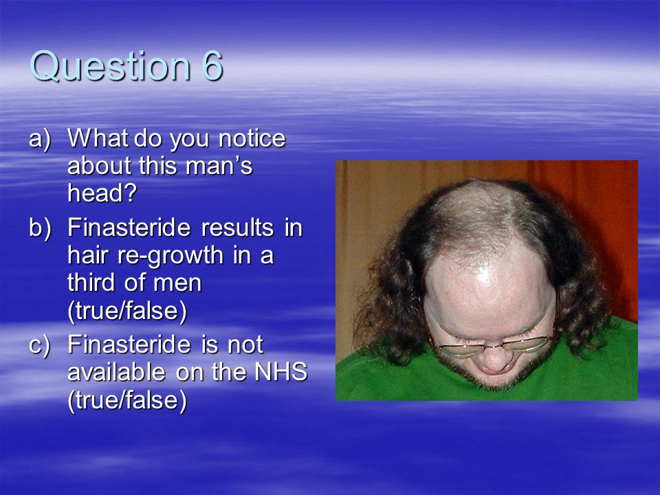 Question 6 a)What do you notice about this mans head? b)Finasteride results in hair re-growth in a third of men (true/false) c)Finasteride is not avai