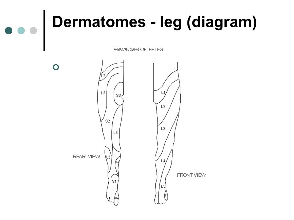 Dermatomes - leg (diagram)