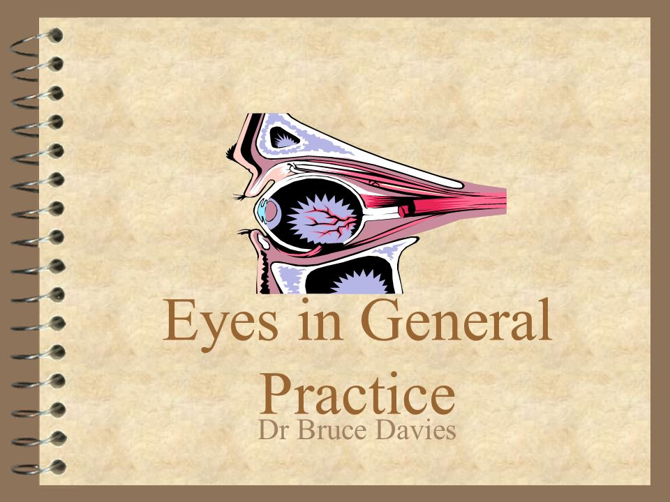 Corneal ulcers 4 Any infection, Abrasion, topical steroids, contact lens use.
