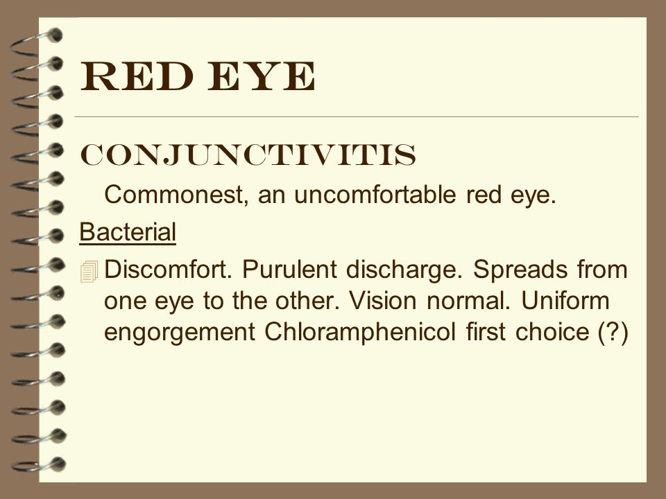 Blepharitis 4 Common, underdiagnosed.Persistently sore eyes.
