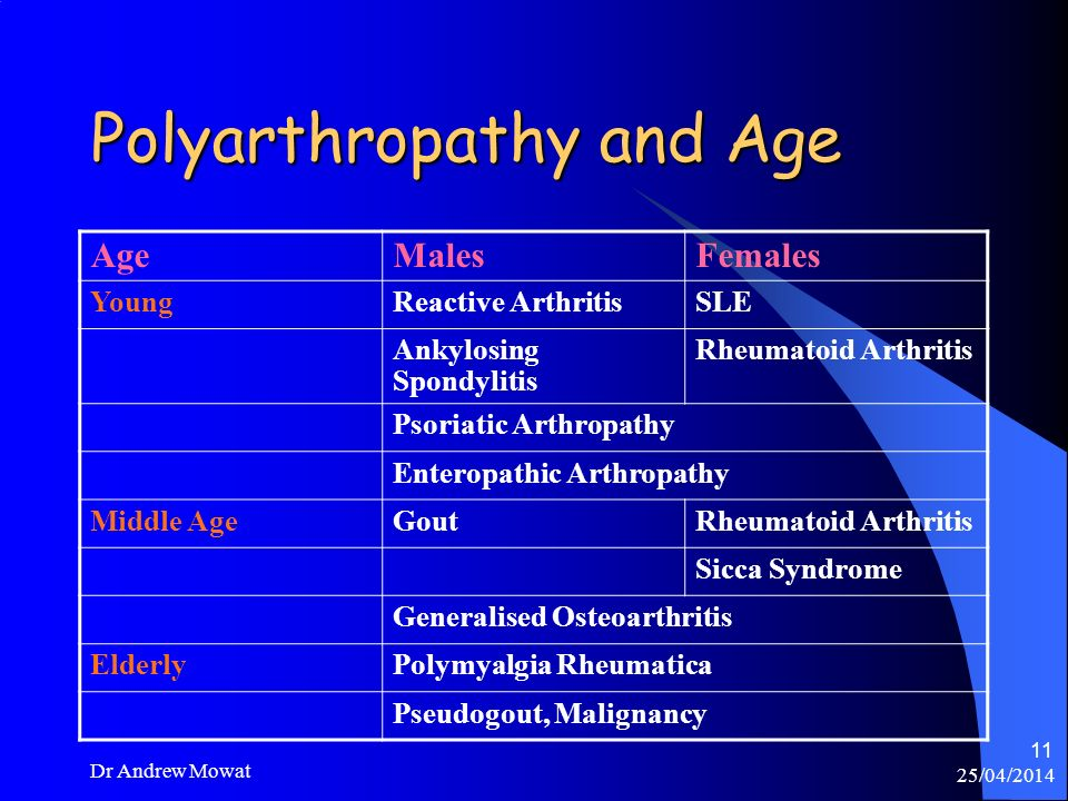 25/04/2014 Dr Andrew Mowat 11 Polyarthropathy and Age AgeMalesFemales YoungReactive ArthritisSLE Ankylosing Spondylitis Rheumatoid Arthritis Psoriatic