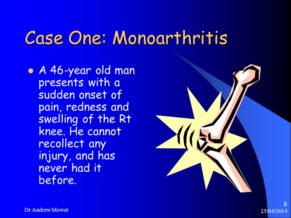 25/04/2014 Dr Andrew Mowat 5 Case One: Monoarthritis A 46-year old man presents with a sudden onset of pain, redness and swelling of the Rt knee. He c