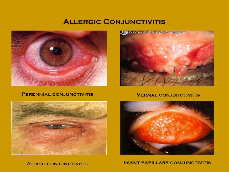 Allergic Conjunctivitis Perennial conjunctivitis Vernal conjunctivitis Atopic conjunctivitis Giant papillary conjunctivitis
