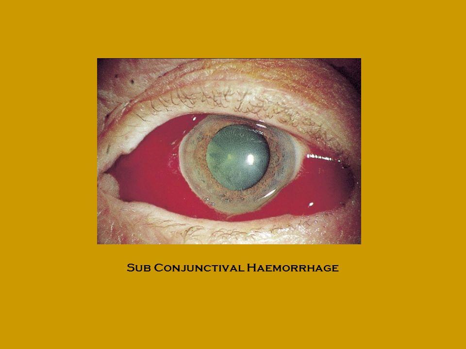 Sub Conjunctival Haemorrhage