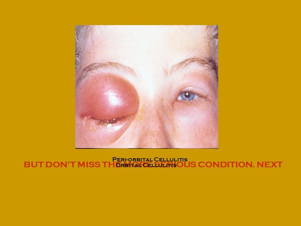 BUT DONT MISS THE MORE SERIOUS CONDITION. NEXT Peri-orbital Cellulitis Orbital Cellulitis