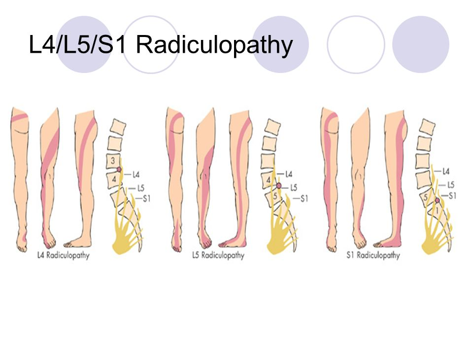 L4/L5/S1 Radiculopathy