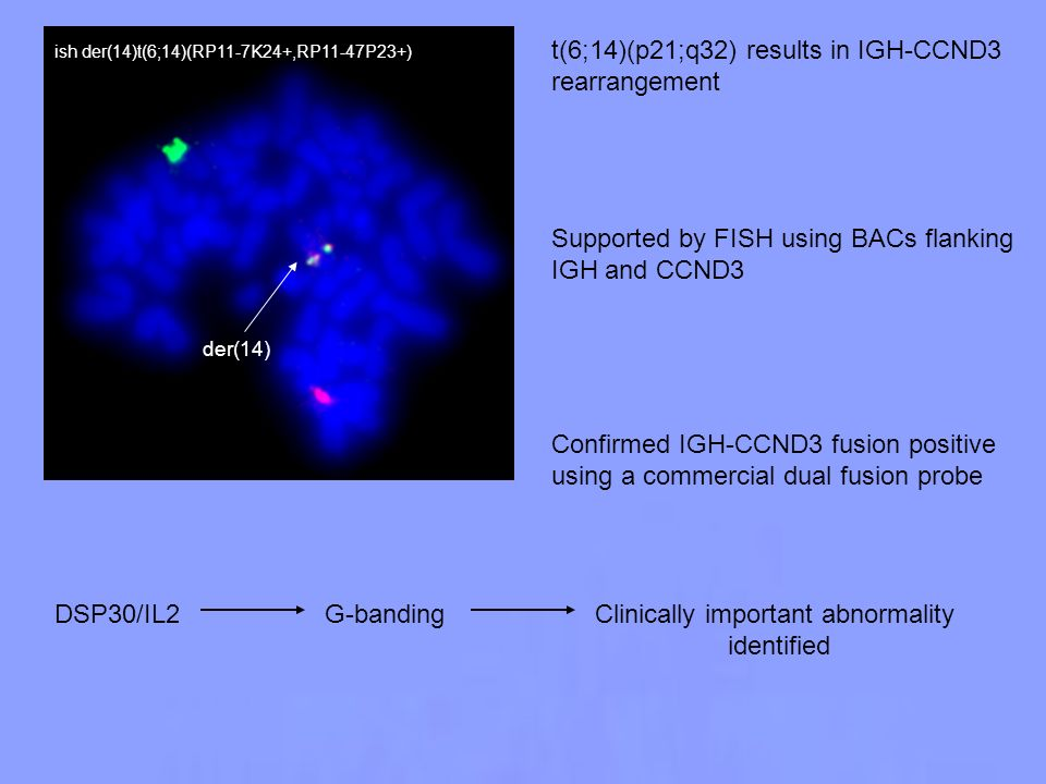t(6;14)(p21;q32) results in IGH-CCND3 rearrangement Supported by FISH using BACs flanking IGH and CCND3 Confirmed IGH-CCND3 fusion positive using a co
