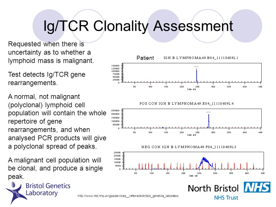 Ig/TCR Clonality Assessment http://www.nbt.nhs.uk/gps/services__referral/b/bristol_genetics_laboratory Patient Requested when there is uncertainty as