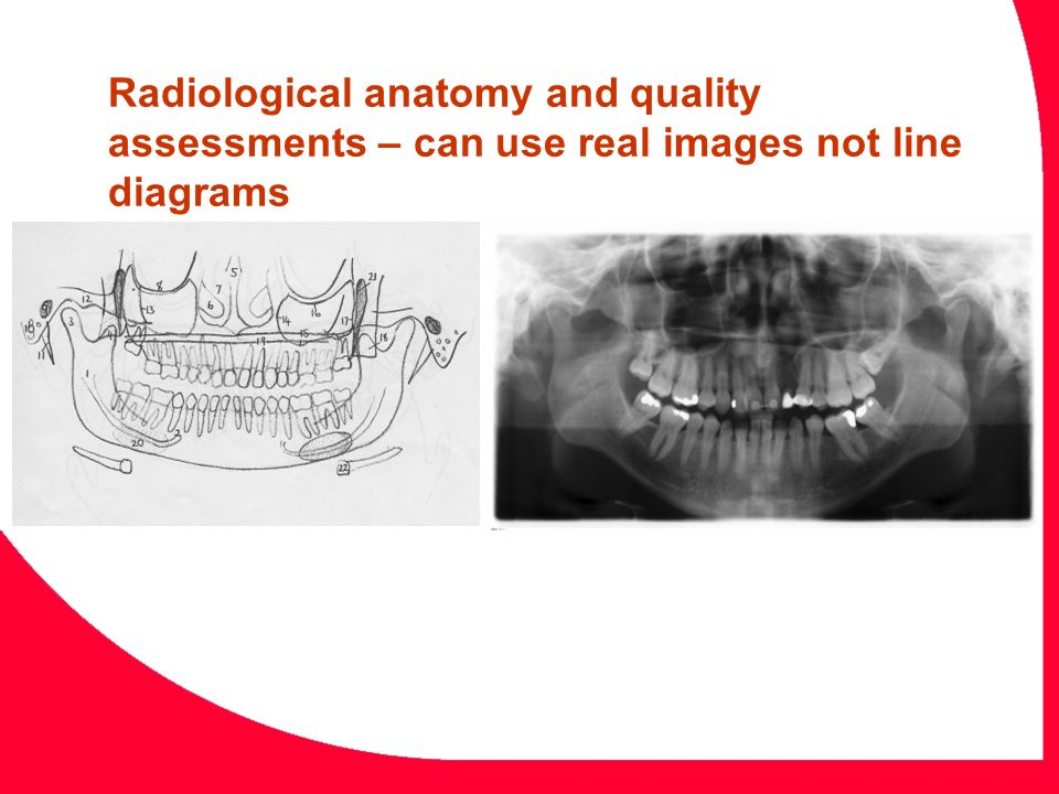 Drag and Drop not previously possible This is a periapical radiograph of maxillary molars and premolars.