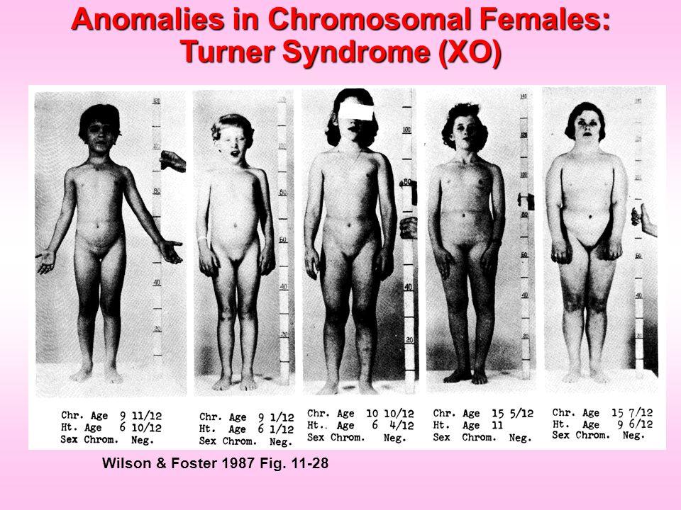 Wilson & Foster 1987 Fig. 11-28 Anomalies in Chromosomal Females: Turner Syndrome (XO)