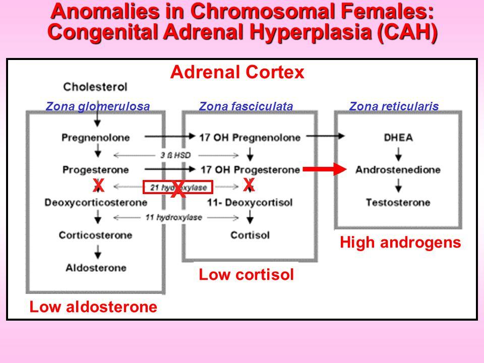 X X Low aldosterone Low cortisol High androgens Adrenal Cortex Zona reticularisZona fasciculataZona glomerulosa X Anomalies in Chromosomal Females: Co