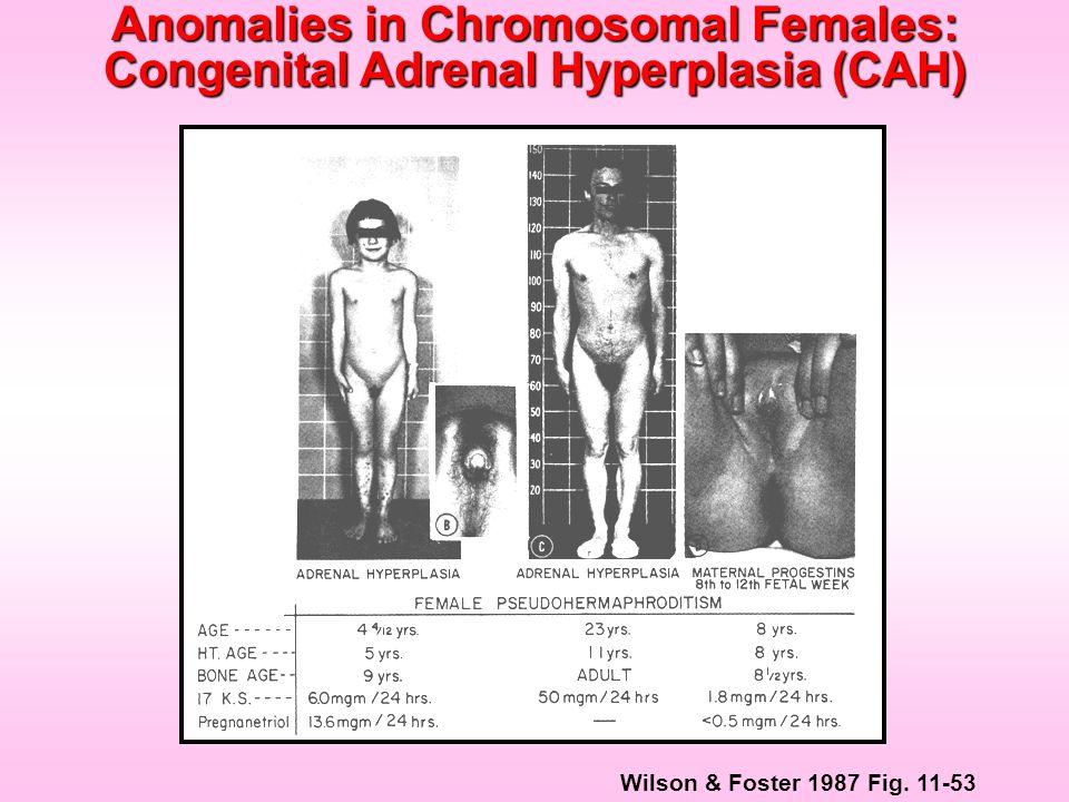 Wilson & Foster 1987 Fig. 11-53 Anomalies in Chromosomal Females: Congenital Adrenal Hyperplasia (CAH)