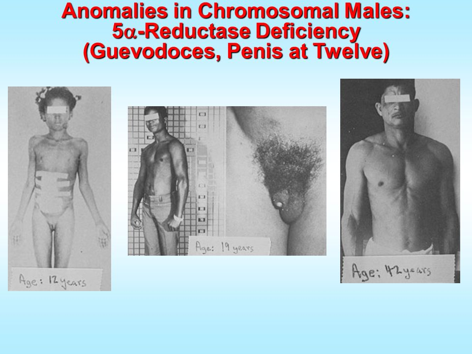 Anomalies in Chromosomal Males: 5 -Reductase Deficiency (Guevodoces, Penis at Twelve)