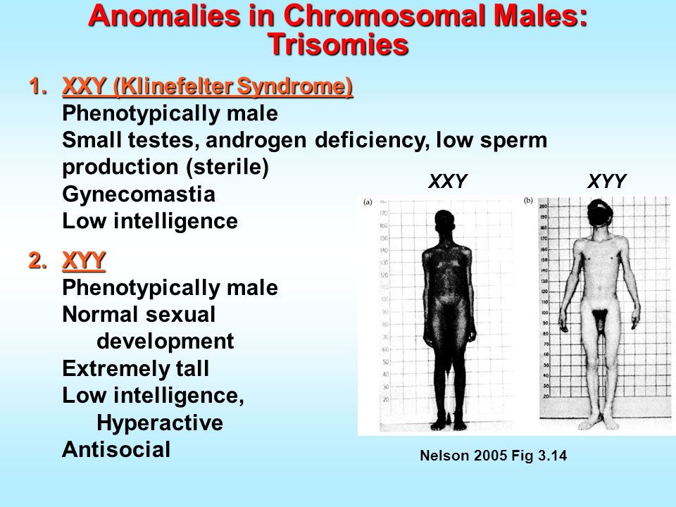 1.XXY (Klinefelter Syndrome) Phenotypically male Small testes, androgen deficiency, low sperm production (sterile) Gynecomastia Low intelligence Nelso
