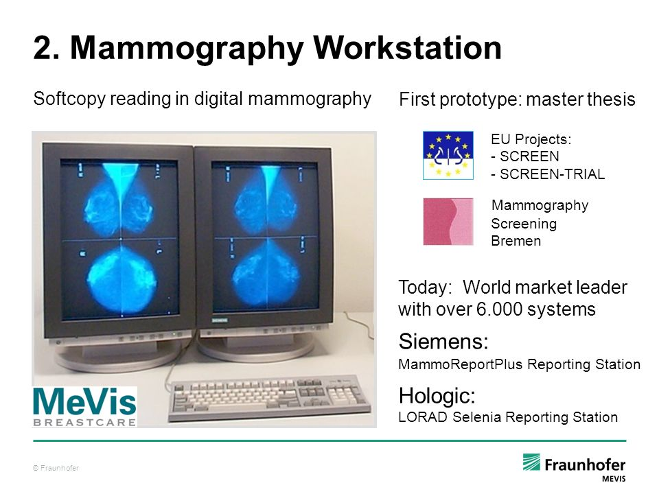© Fraunhofer 2. Mammography Workstation Softcopy reading in digital mammography Mammography Screening Bremen EU Projects: - SCREEN - SCREEN-TRIAL Toda