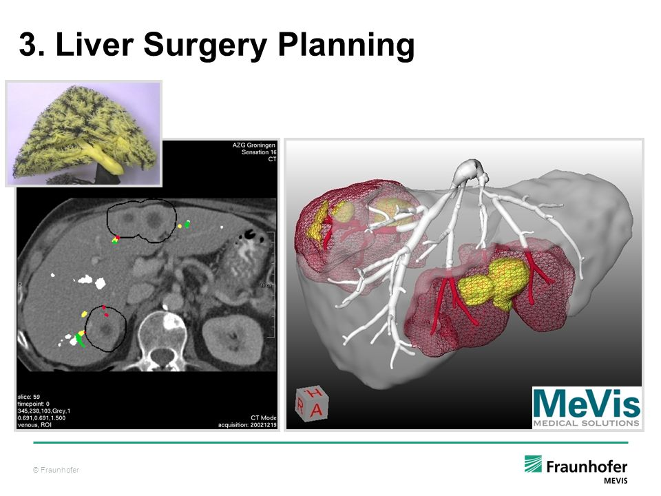 © Fraunhofer 3. Liver Surgery Planning