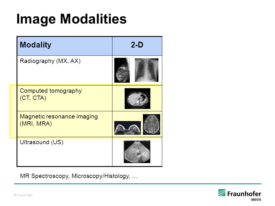 © Fraunhofer Modality 2-D 3-D Dynamic [t] Radiography (MX, AX) Computed tomography (CT, CTA) Magnetic resonance imaging (MRI, MRA) Ultrasound (US) Ima