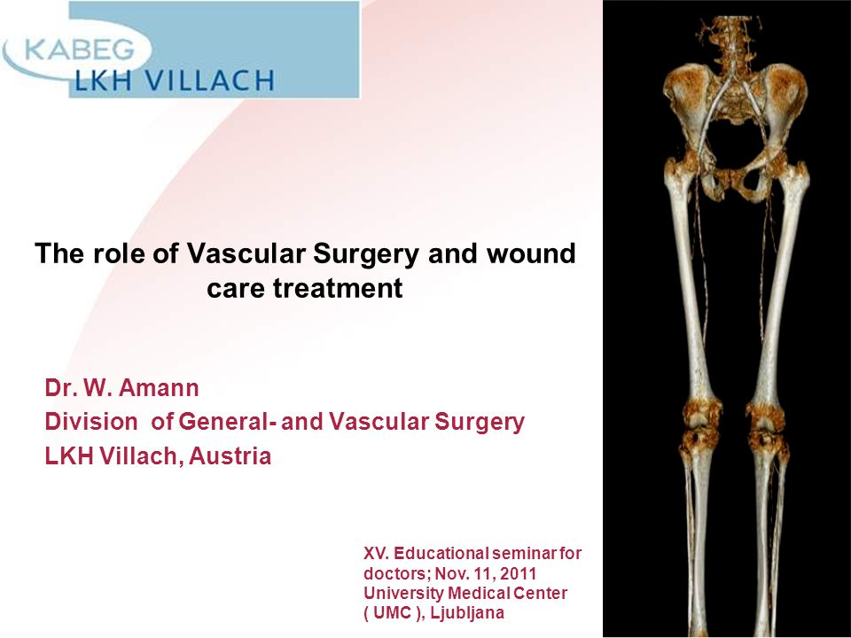 The role of Vascular Surgery and wound care treatment Dr. W. Amann Division of General- and Vascular Surgery LKH Villach, Austria XV. Educational semi