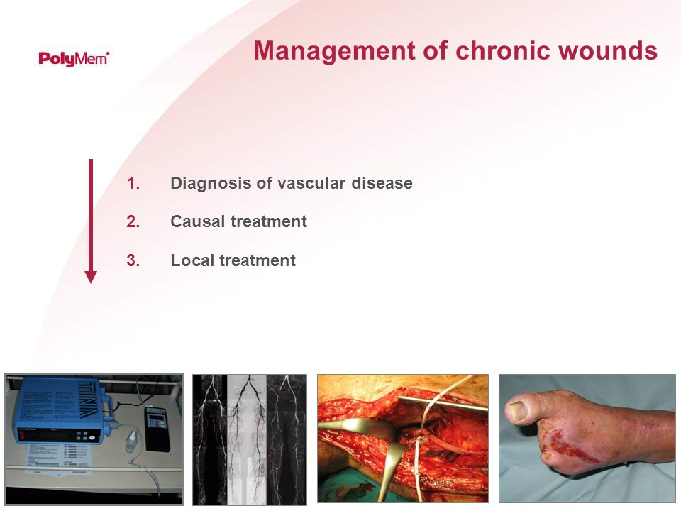 TIME - principles of wound bed preparation Tissue revascularization removal of non-viable or deficient tissue Infection control of infection or inflammation local antiseptic systemic antibiotics Moisture Exsudate management Edge of wound excavation hyperceratosis maceration epitheliasation