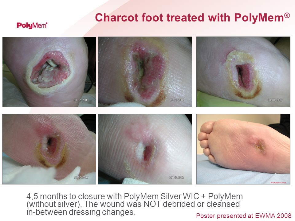 Charcot foot treated with PolyMem ® 4,5 months to closure with PolyMem Silver WIC + PolyMem (without silver). The wound was NOT debrided or cleansed i